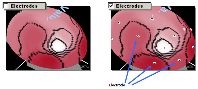 Electrodes: Brain Mapping 2