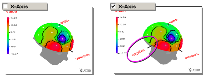 X-Axis: Brain Mapping 2