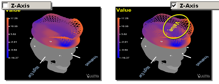 Z-Axis: Brain Mapping 2